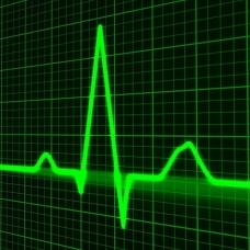 pulse-trace.jpg